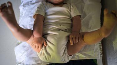La kiné est désormais contre-indiquée pour soigner la bronchiolite chez les nourrissons.